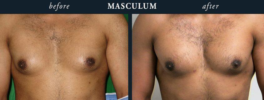 Gynecomastia Results