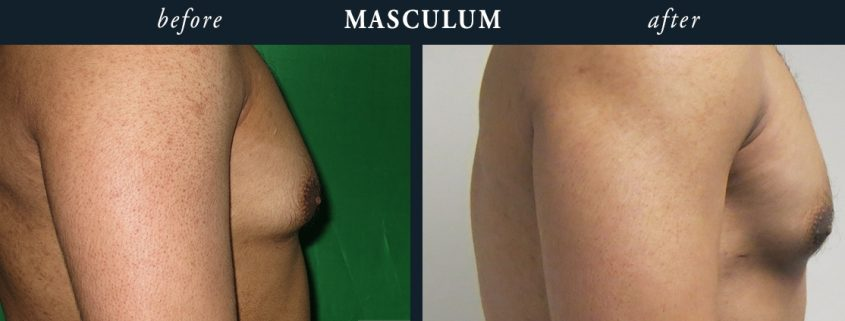 Gynaecomastia before and afters