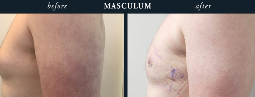 Male Chest Reduction Berkshire