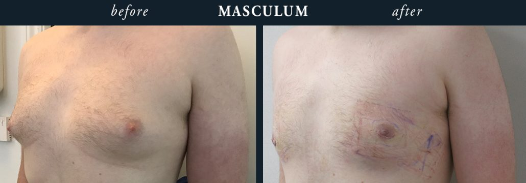 Male Chest Reduction London