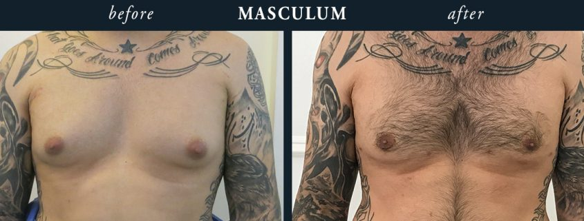 Moob Reduction Results