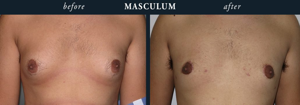 Male Chest Reduction Surgery