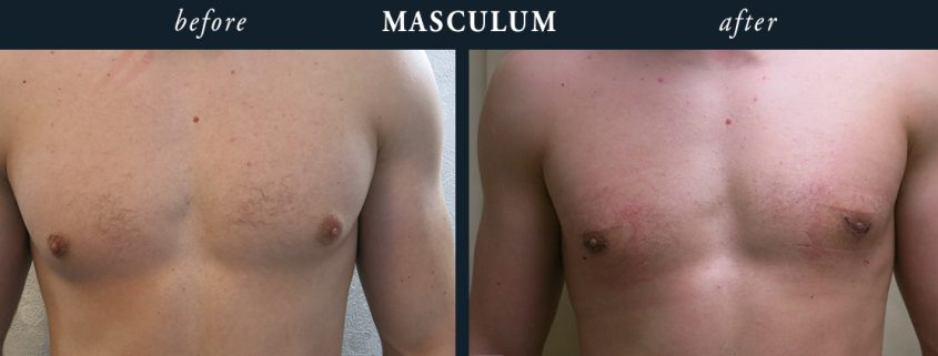 Gynecomastia Results London