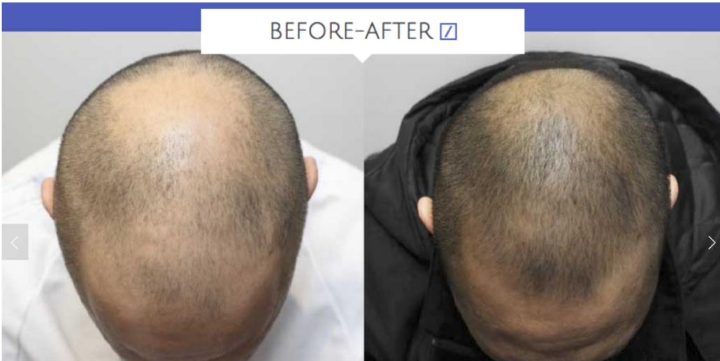 kerastem before and after